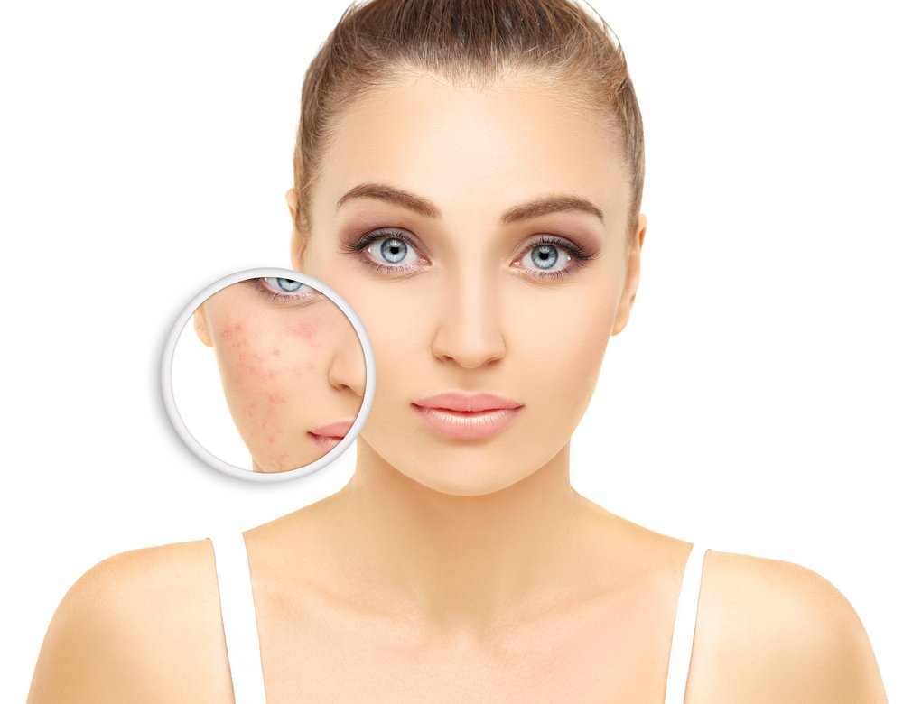 Rosacea And Redness Treatment Oakville Ontario